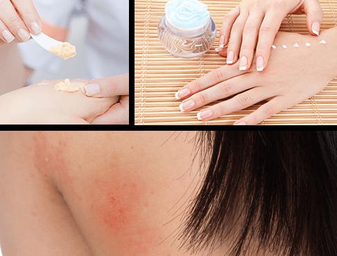 Prevención de enfermedades de la piel